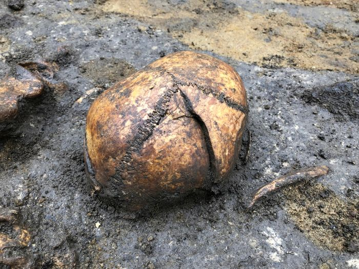 Abb. 6: Schädel mit drei schweren Hiebverletzungen. © Landesamt für Denkmalpflege und Archäologie Sachsen-Anhalt.