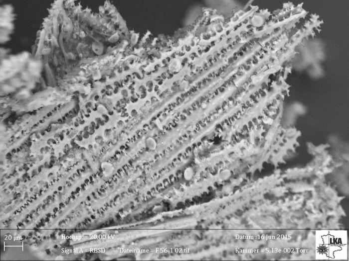 Abb. 6: Verschiedene Ansichten der unter dem Rasterelektronenmikroskop dokumentierten Phytolithe. Abbildung 6 zeigt die Phytolithe zwischen den Bronzegegenständen im Gefäß. © Landesamt für Denkmalpflege und Archäologie Sachsen-Anhalt, Uwe Schwarzer.