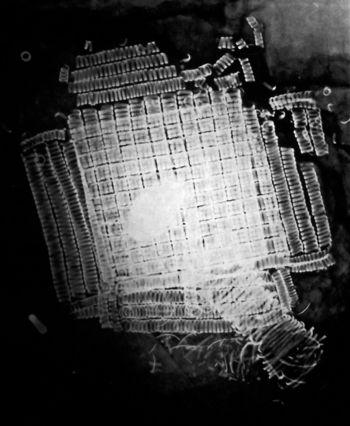 Abb.3: Röntgenaufnahme des Bronzedrahtspiralröllchen-Bereichs. © Landesamt für Denkmalpflege und Archäologie Sachsen-Anhalt.