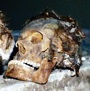 Abb. 2: Meßdorf Dorfkirche, Landkreis Stendal. Skelett eines erwachsenen Individuums in einem Sarg; gut erhaltener Schädel mit Resten der Bartbehaarung, einer Perücke sowie eines Totenkranzes aus getrockneten Ästchen und Metallfäden auf dem Kopf. – Bei dem Toten handelte es sich wohl um einen Angehörigen der Familie des Pfarrers von der Hude aus dem 17. Jahrhundert. © U. Lenz, Meßdorf 1981.